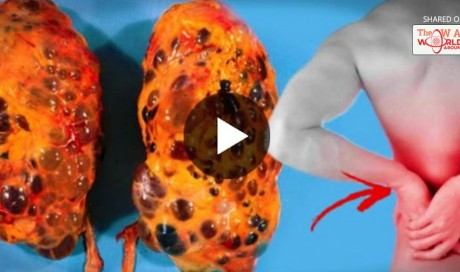 Bad Habits That Harm Your Kidneys That You Might Be Doing! Avoid Them Immediately!