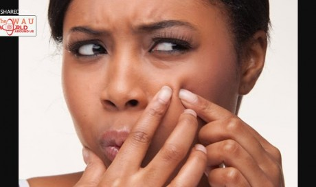 Can Popping Pimples Kill You?