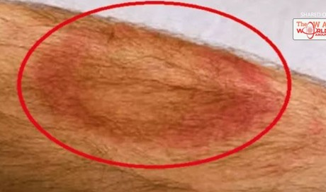 This Man Died Days After This Red Spot Showed Up. When The Docs Figured Out Why? They Freaked