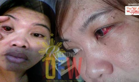 Slapped and Almost Pierced In The Eye; This OFW Suffered So Much In The Hands Of Her Abusive Employer | OFW | WAU