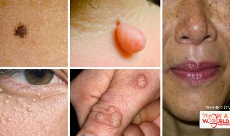 Natural Remedies to Destroy Moles, Warts, Blackheads, Skin Tags and Age Spots completely!