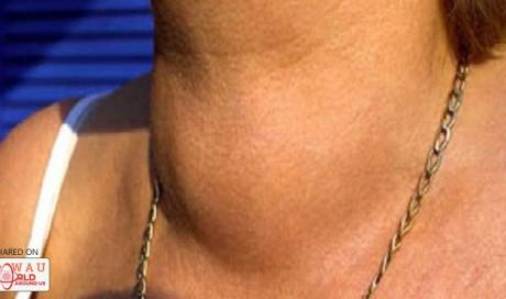 This Popular Drink Destroys Your thyroid. Do You Drink It? | Blog | Health | WAU
