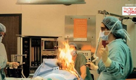 Woman Farts During Surgery, Gets Badly Burned