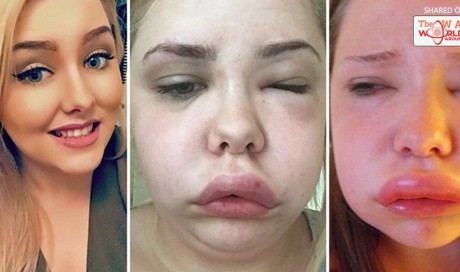 'KIDS CRY WHEN THEY SEE ME' Young woman lives in danger of choking to death as her face and throat swell - DOUBLING in size