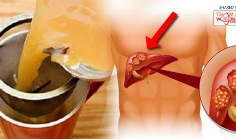 This Tea Dissolves Kidney Stones, Cleanses the Liver, and Kills Cancer Cells