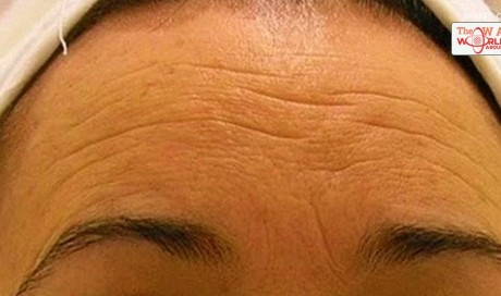 Get Rid Of The Wrinkles In Just 1 Week Make A Homemade Cream That Is Going To Make You Younger