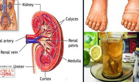 Homemade Remedy That Will Help You Cleanse Your Kidneys and Filter Your Blood Stream!