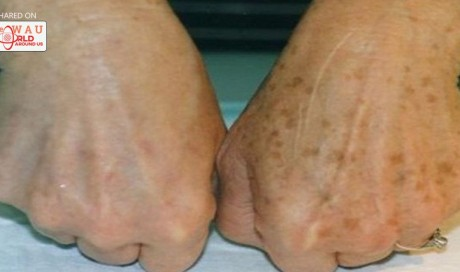 Amazing! She Removed Her Brown Spots With This Common Ingredient!