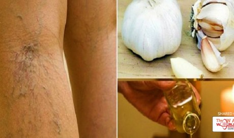 Treat Your Varicose Veins With This Very Effective Natural Remedy
