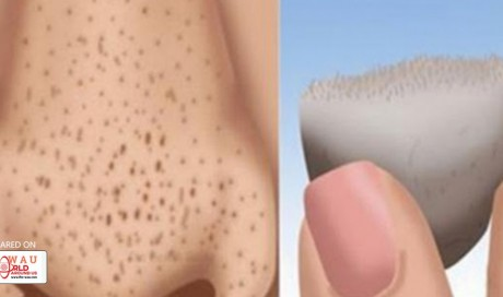 4 Home Remedies for Removing Blackheads Fast and Naturally