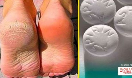 Eliminate Varicose Veins, Calluses and Rough Feet With This Homemade Remedy in Only 10 Minutes!