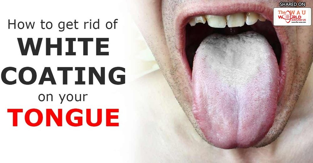 White patches on the tongue. Causes of white fur on the tongue.