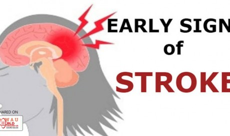 These are the 5 signs of stroke one should know before it's too late!