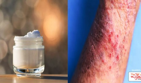 5 Skin-Soothing Tips And Products People With Eczema Swear By