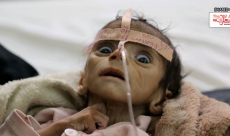 Yemen Is 'Worst Place on Earth to Be a Child'