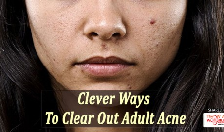 Clever Ways To Clear Out Adult Acne