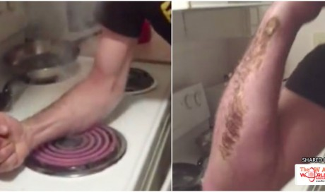 The New 'Hot Coil Challenge' Is Literally Scarring People For Life