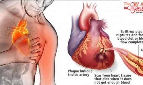 80% of Heart Attacks Could Have Been Avoided with These 5 Things