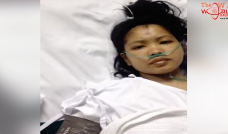 Pinay Domestic Helper Jumps from Third Floor of Building to Escape Employers in Kuwait