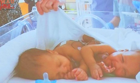 Qatar's Sidra Medicine successfully separates conjoined twins