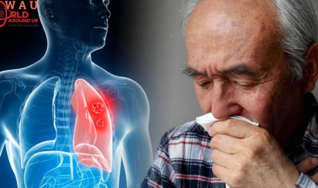 Lung cancer symptoms: If this happens to your fingers you could have the deadly disease