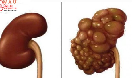 If You Want to Protect Your Kidneys Don't Do