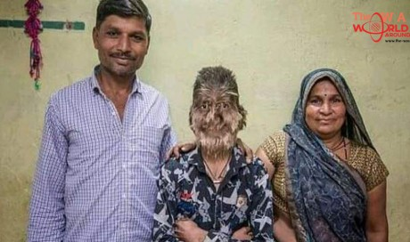 Indian boy has rare ailment that turns him into a 'werewolf'